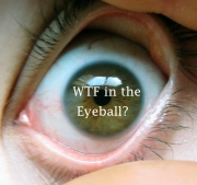 wtf_int_the_eyeball